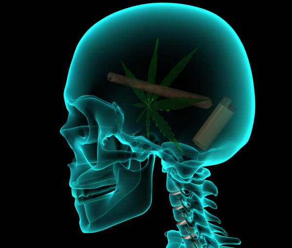cannabis-may-help-brain-injuries