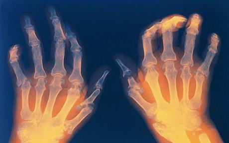 cannabis-helps-arthritis